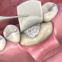 bone graft dominican republic