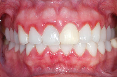Patient Gingivitis